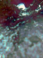 http://curezone.com/upload/Blogs/When_s_Weird_/tn-The_Elbow_Original_.jpg