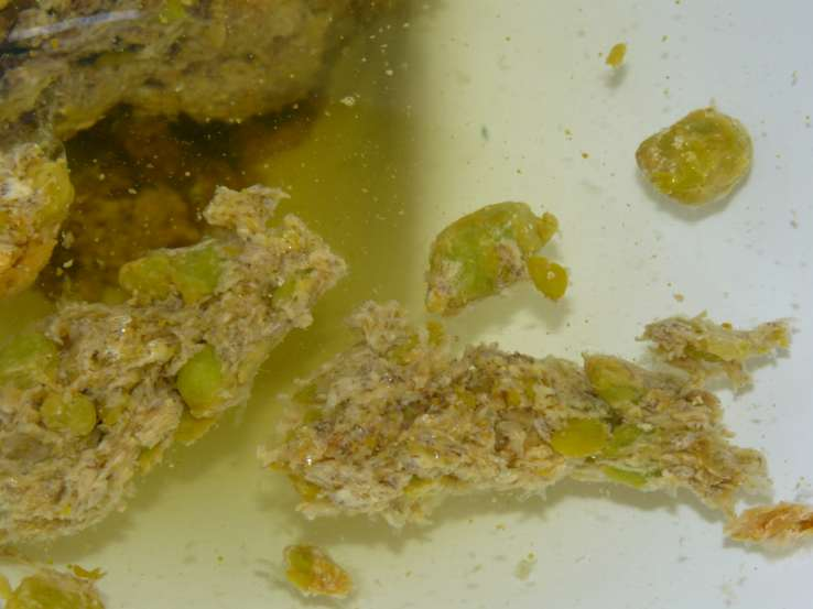 Gallstones Encapsulated by Psyllium Husk (modded� ... (Click to enlarge)