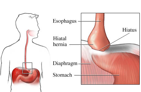 Gastroesophageal Sphincter There are two main types of
