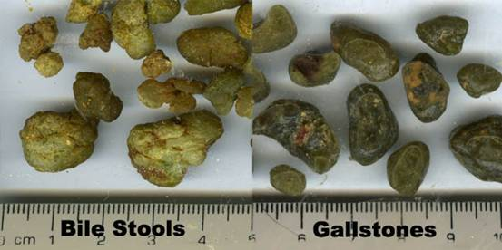 herbal remedy for gallstones cause diarrhea