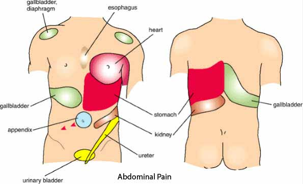 appendix pain or constipation