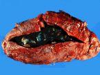 gallbladder_removed