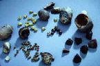 gallstones from the gallbladder