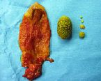 gallstones from the gallbladder