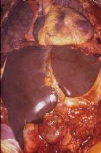 intrahepatic stones