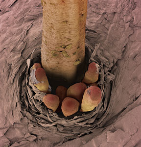 Eyelash Mites On Curezone Image Gallery