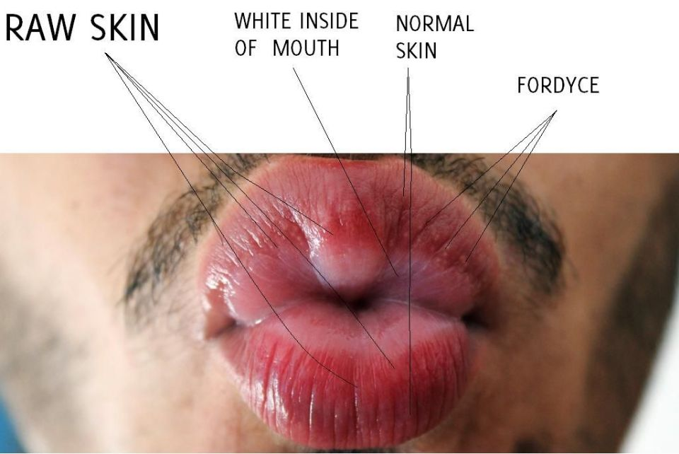 My lips! - opinions: is it an allergy? at Peeling Lips ...