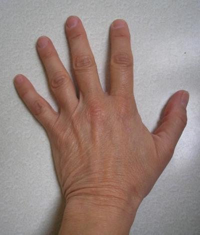 Spider_Bite_Normal_Left_Hand.jpg