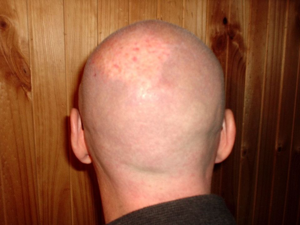 Shaved head cures folliculitis