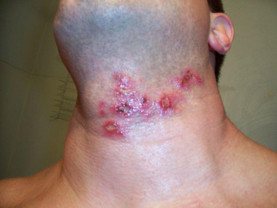 rash from hot tub #11