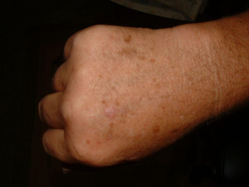 Mole Melanoma Site - Introduction - dermatology