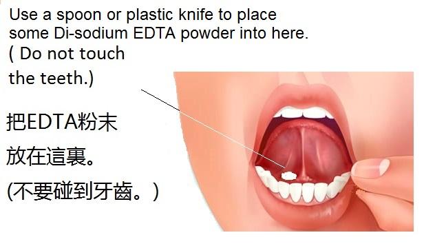 http://curezone.com/upload/Members/new03/sublingual_1.jpg