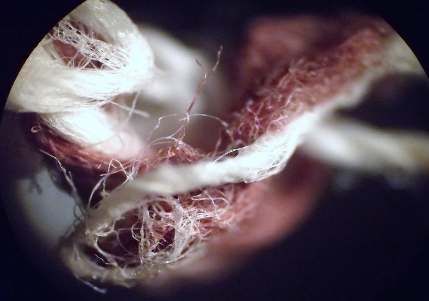 https://www.curezone.org/upload/Parasites/0073.jpg