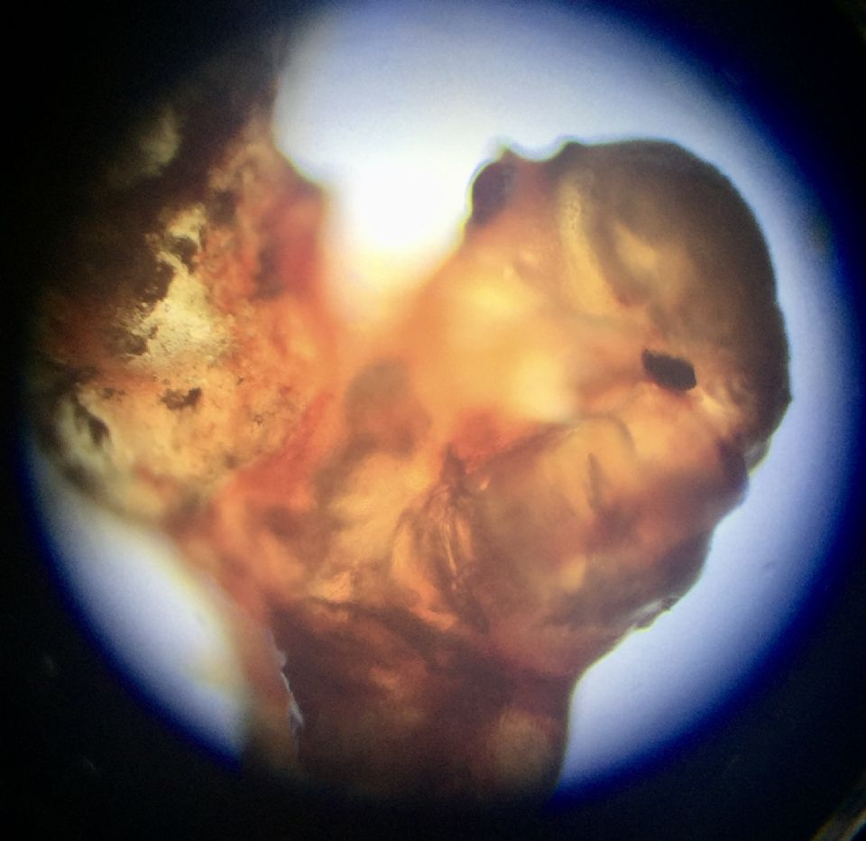 Microscopic Photo Parasite Skin Cyst Larva Worm Fluke Morgellons Disease - What Is This? 9
