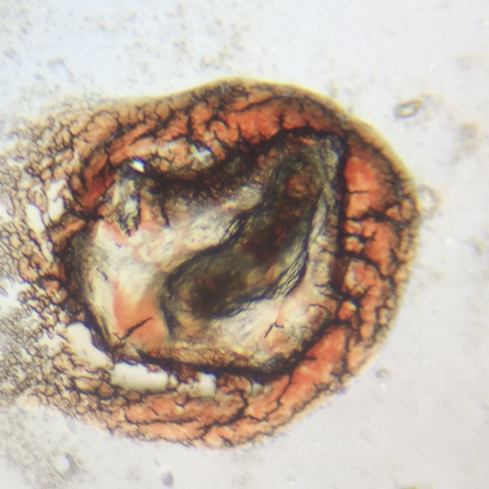 Microscopic Photo Parasite Skin Cyst Larva Worm Fluke Morgellons Disease - What Is This? 3