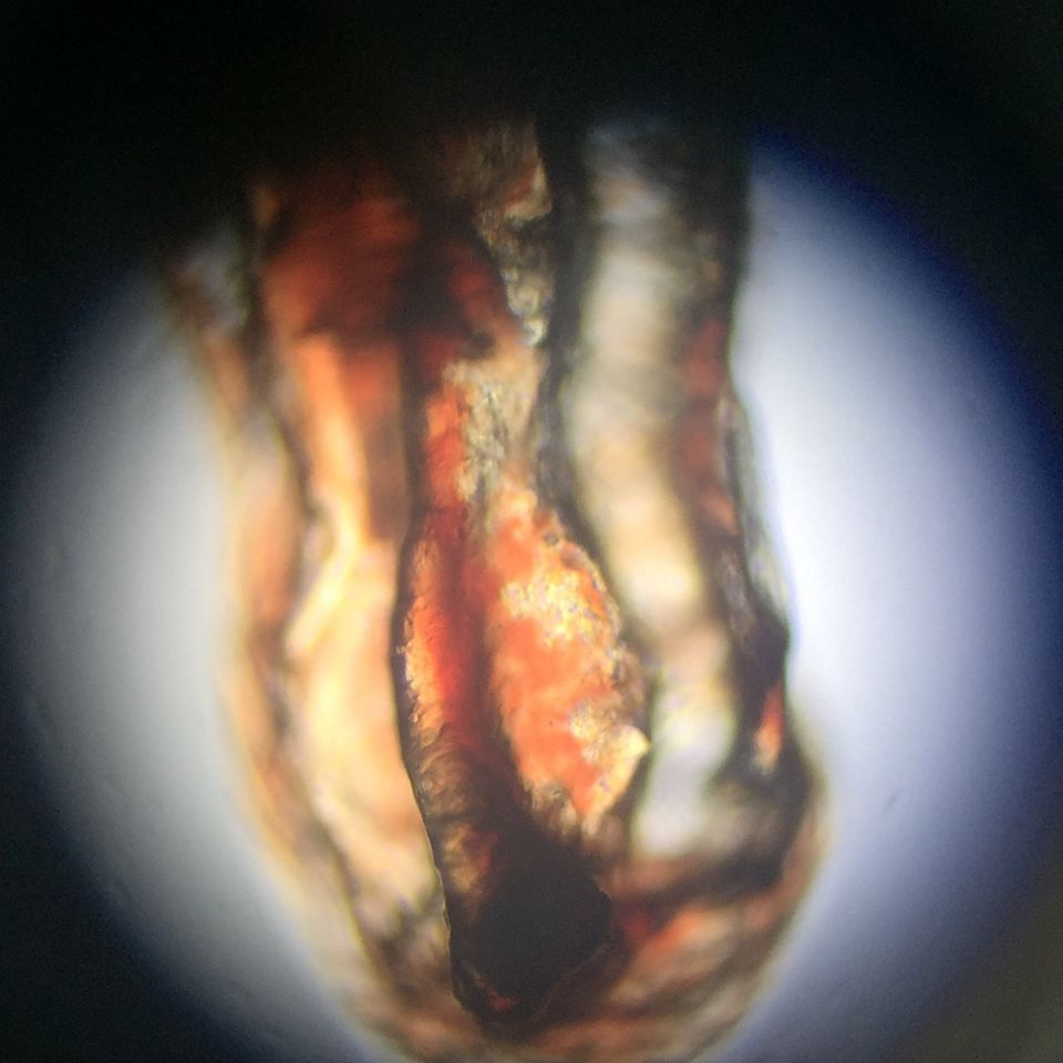 Microscopic Photo Parasite Skin Cyst Larva Worm Fluke Morgellons Disease - What Is This? 4