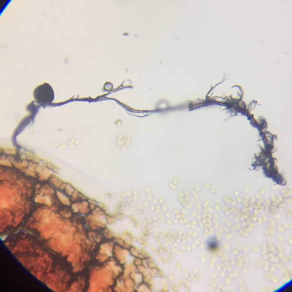Microscopic Photo Parasite Face Filament Attached to Cyst Larva Worm Fluke Morgellons Disease - What Is This?