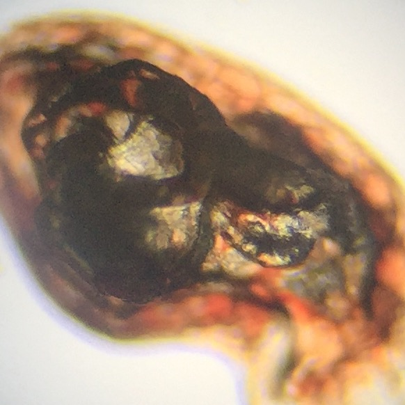Microscopic Photo Parasite Skin Cyst Larva Worm Fluke Morgellons Disease - What Is This?