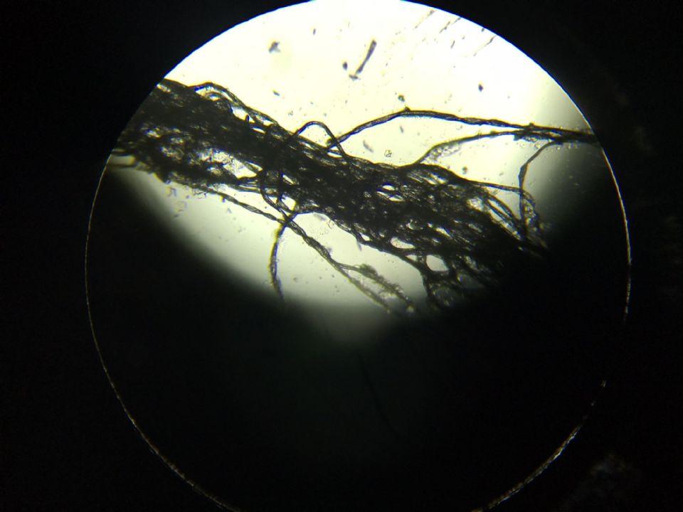 https://www.curezone.org/upload/Parasites/11_7_8.jpeg