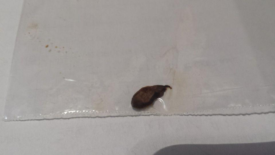 http://curezone.com/upload/Parasites/20170103_195431.jpg