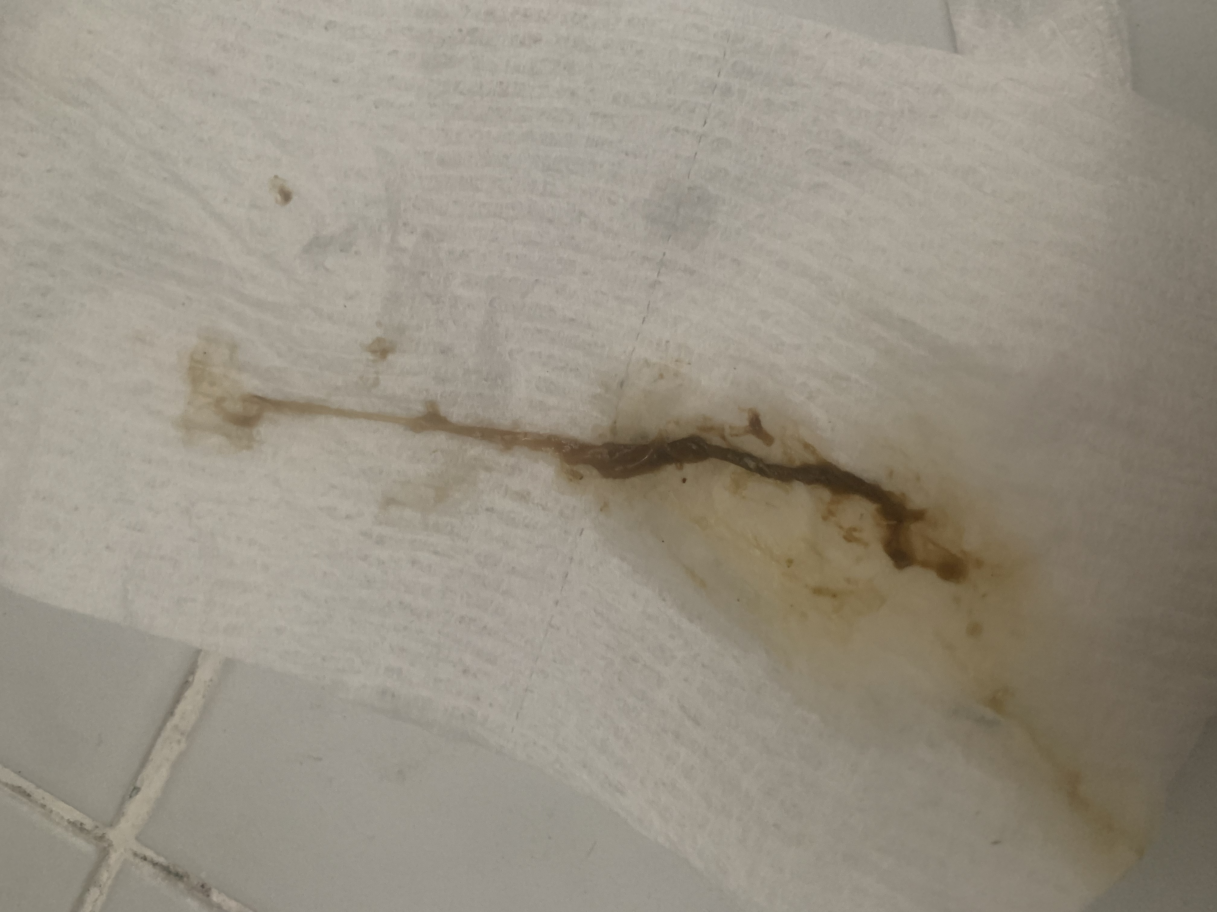 https://www.curezone.org/upload/Parasites/9375A1D8_946F_41D7_A679_A5FB707C6660.jpeg