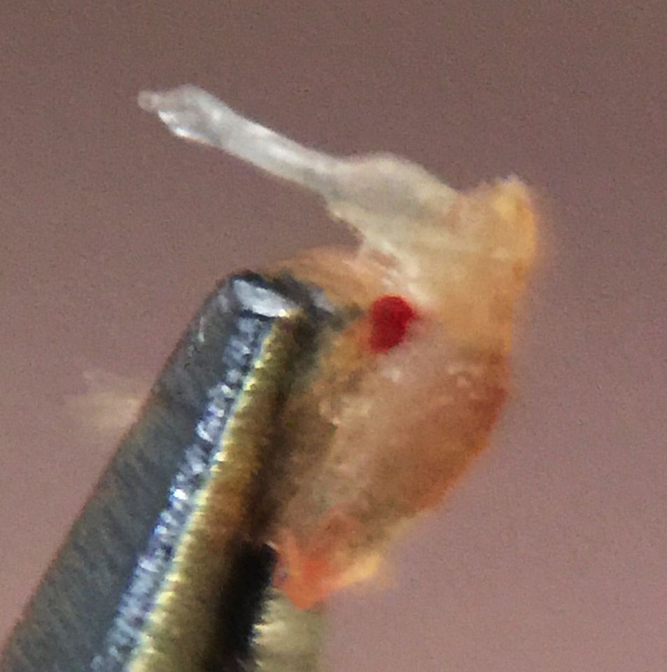 Dry flaky scalp accutane