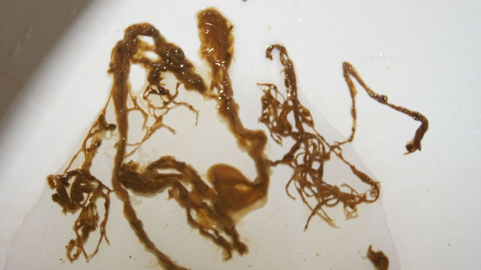 What Diseases Can You Get From Cat Faeces