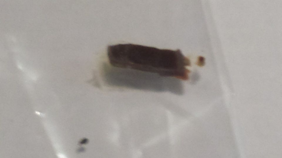 http://curezone.com/upload/Parasites/Forum_01/20170103_195541.jpg
