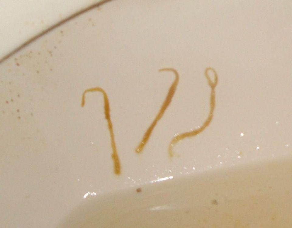 pinworm-eggs-in-poop