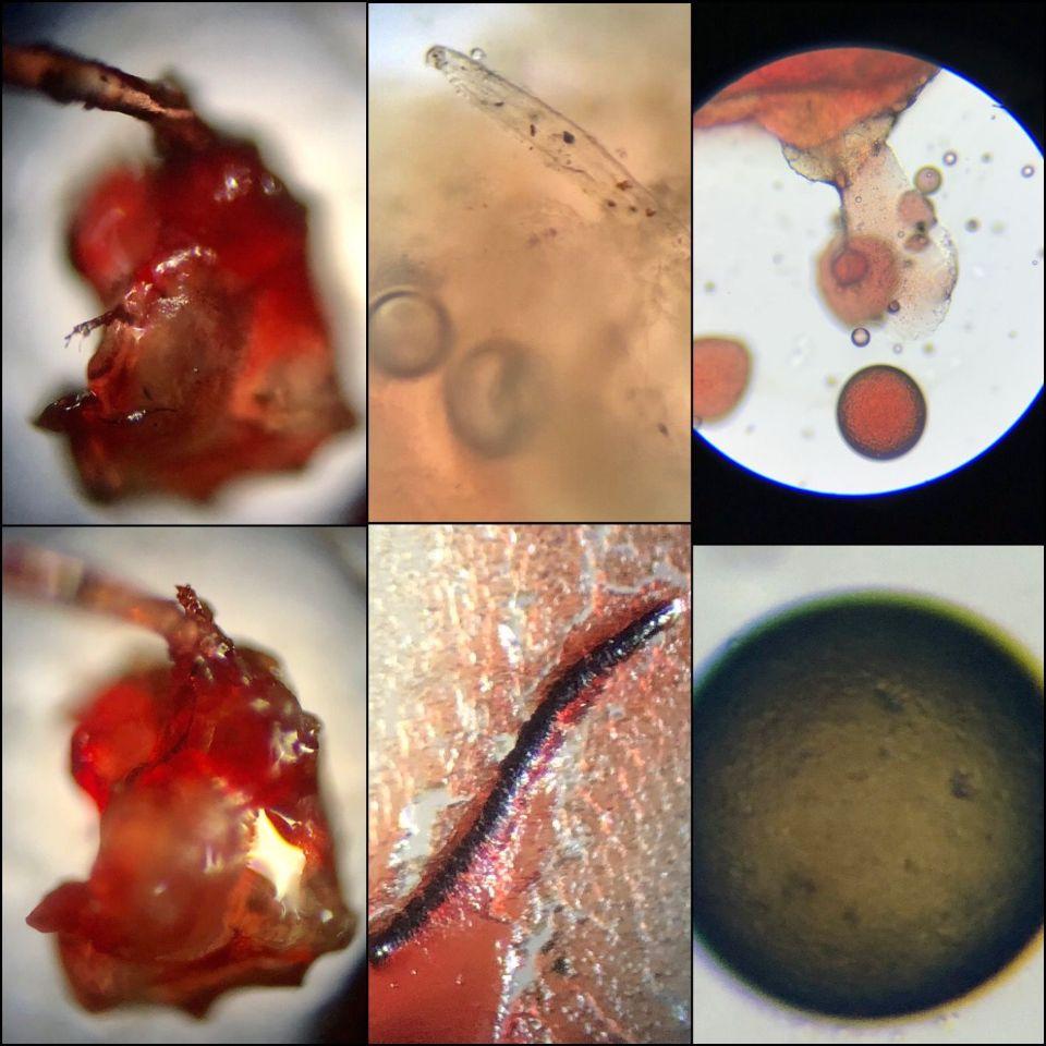 https://www.curezone.org/upload/Parasites/Forum_01/6EDE7440_8564_4E23_BCAD_20C926C60A24.jpeg