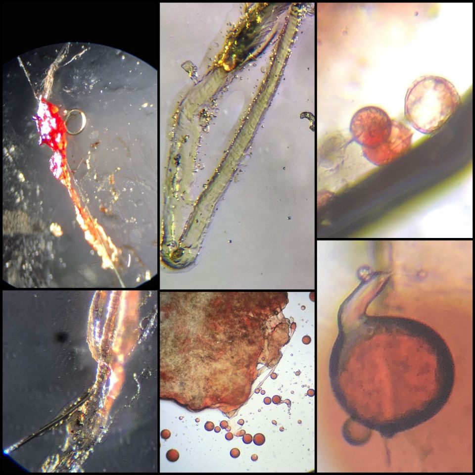 Skin, Parasites, Worms, Demodex, Face, Tentacles