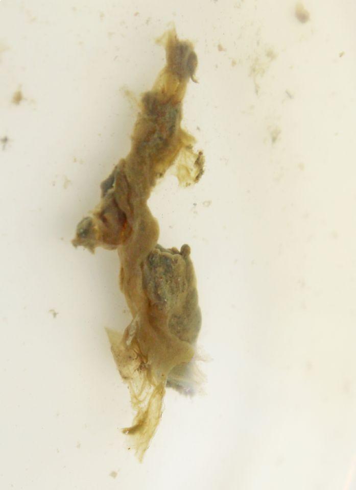 https://www.curezone.org/upload/Parasites/Forum_01/Bettie_Blue/1_6_18a.jpg