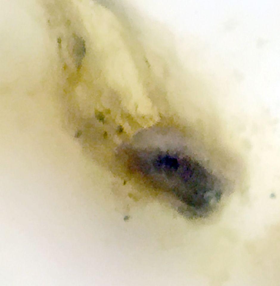 https://www.curezone.org/upload/Parasites/Forum_01/Bettie_Blue/IMG_9323.jpg
