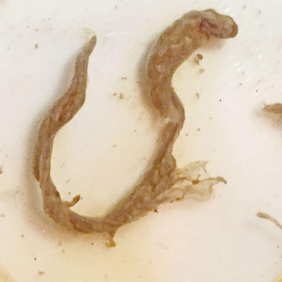 https://www.curezone.org/upload/Parasites/Forum_01/Bettie_Blue/dec2017E.jpg