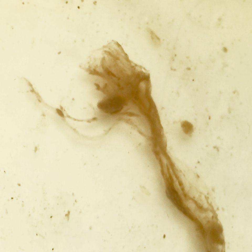 https://www.curezone.org/upload/Parasites/Forum_01/Bettie_Blue/dec2017F.jpg