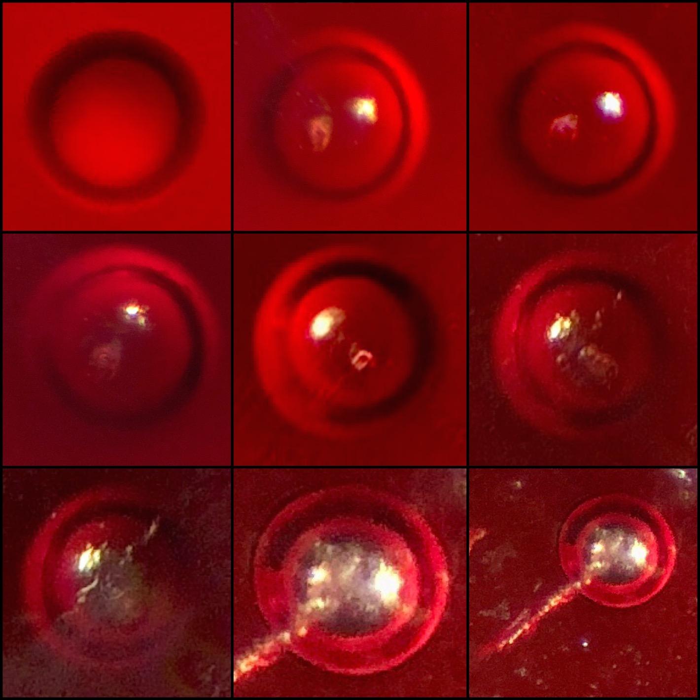 Microscopic Photos oc Round Skin Parasite OVA Hatching