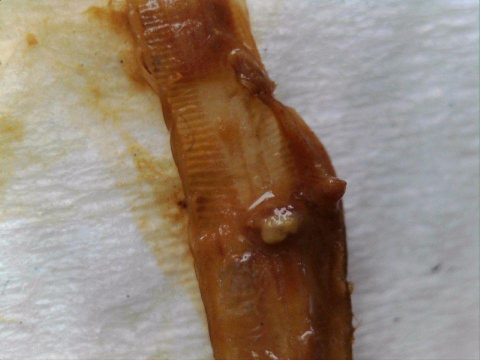 http://curezone.com/upload/Parasites/Forum_01/Hanoniem/20170514_110259_602.jpg