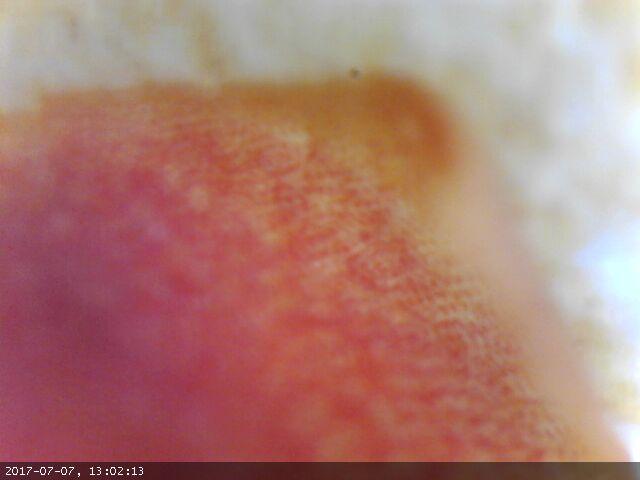 https://www.curezone.org/upload/Parasites/Forum_01/Hanoniem/image1897.jpg