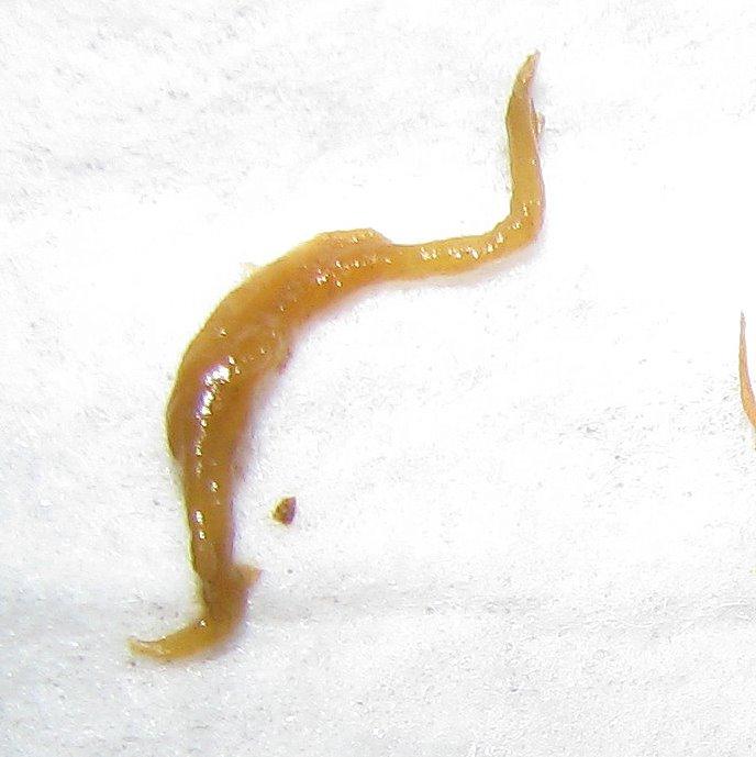 Fluke Parasite >> Worm Fluke Identification At Ask Humaworm Parasites With