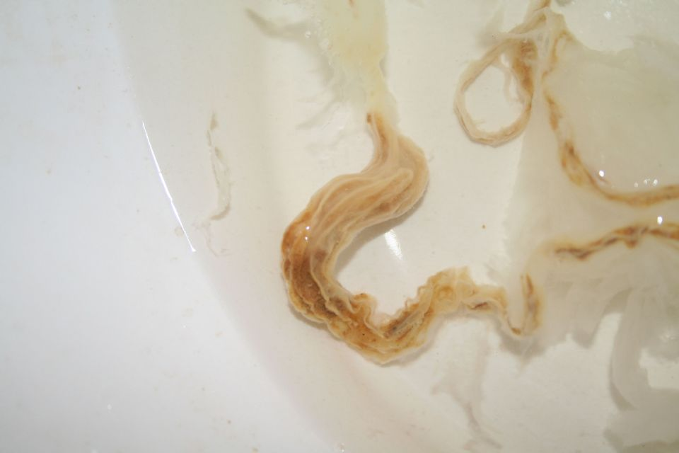 Please Help With Parasite Identification Photos Included