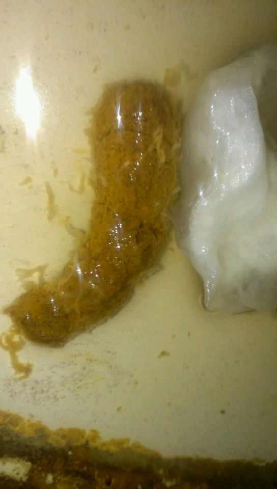 Unknown Parasite In Stool On Curezone Image Gallery
