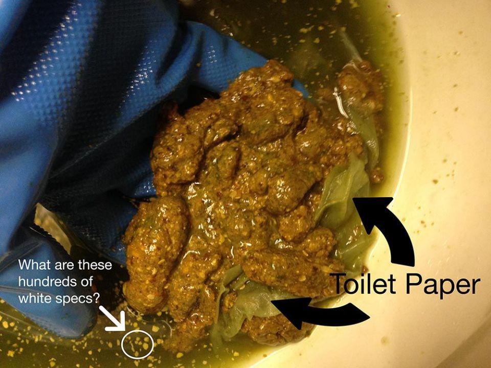 http://curezone.com/upload/Parasites/Forum_01/Whitespecs2.jpg