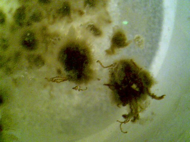 Are Thes Parasites Worms Mucus At Parasites Support Forum