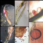 https://www.curezone.org/upload/Parasites/Forum_01/tn-B34128E5_7ADC_4F85_A01C_222227249430.jpeg