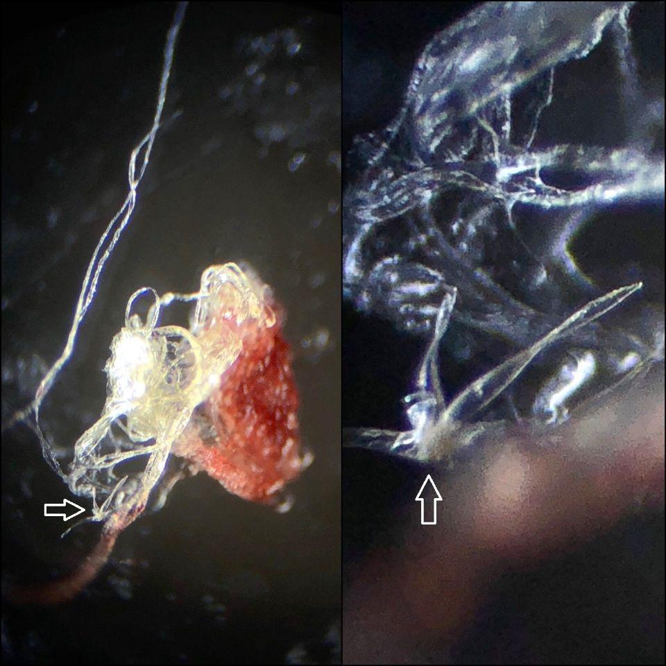 https://www.curezone.org/upload/Parasites/IMG_28551.jpg