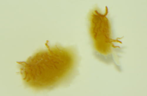 Are thes parasites/worms/mucus at Parasites Support Forum (Alt Med), with image embedded, topic ...