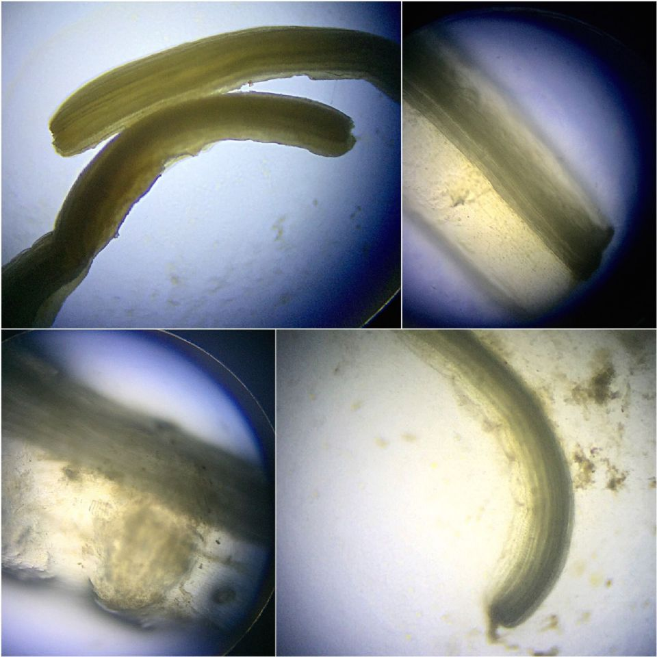 Microscopic Photos Of My Menagerie Of Intestinal Parasites