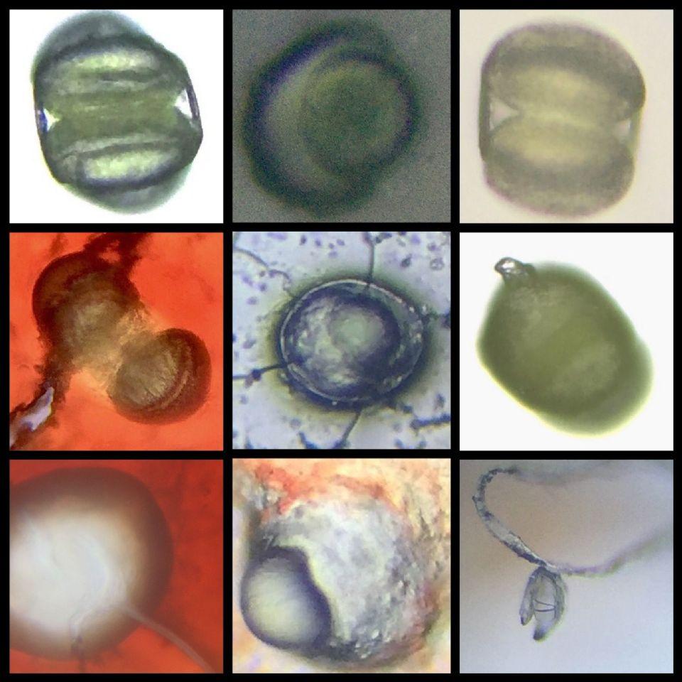 http://curezone.com/upload/Parasites/IMG_8212.jpg