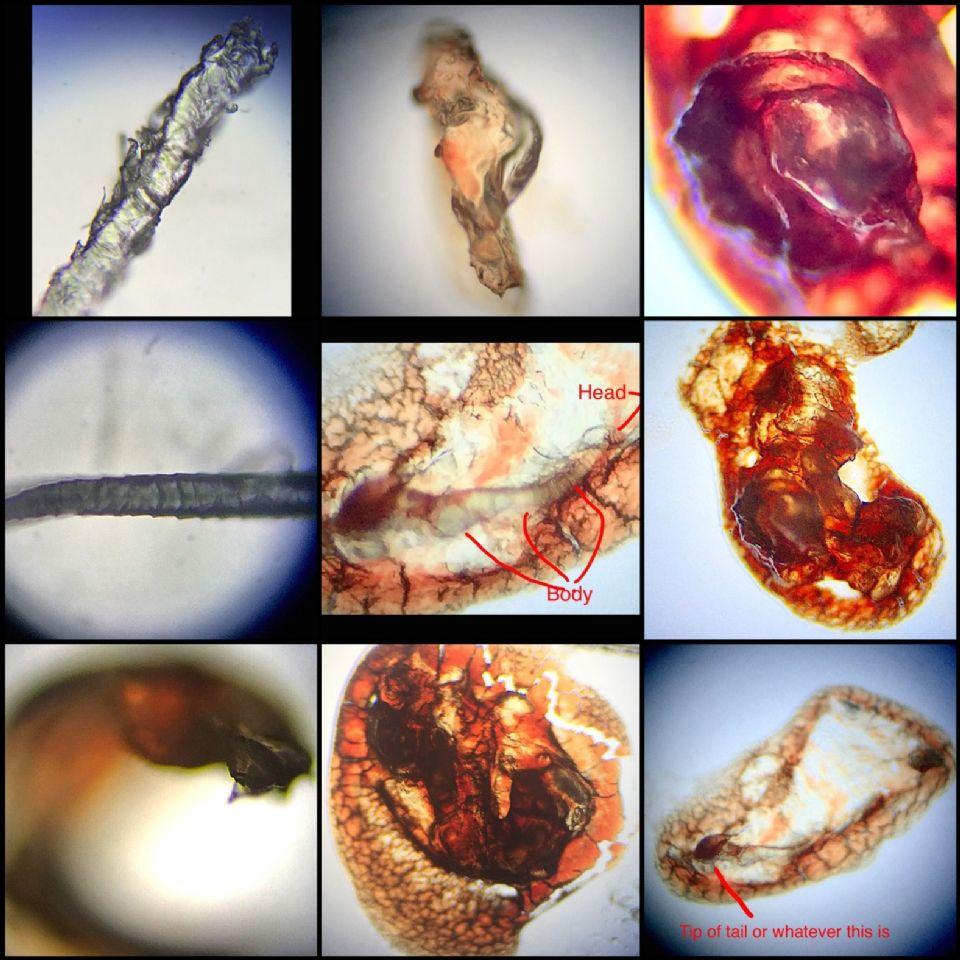 http://curezone.com/upload/Parasites/IMG_8219.jpg