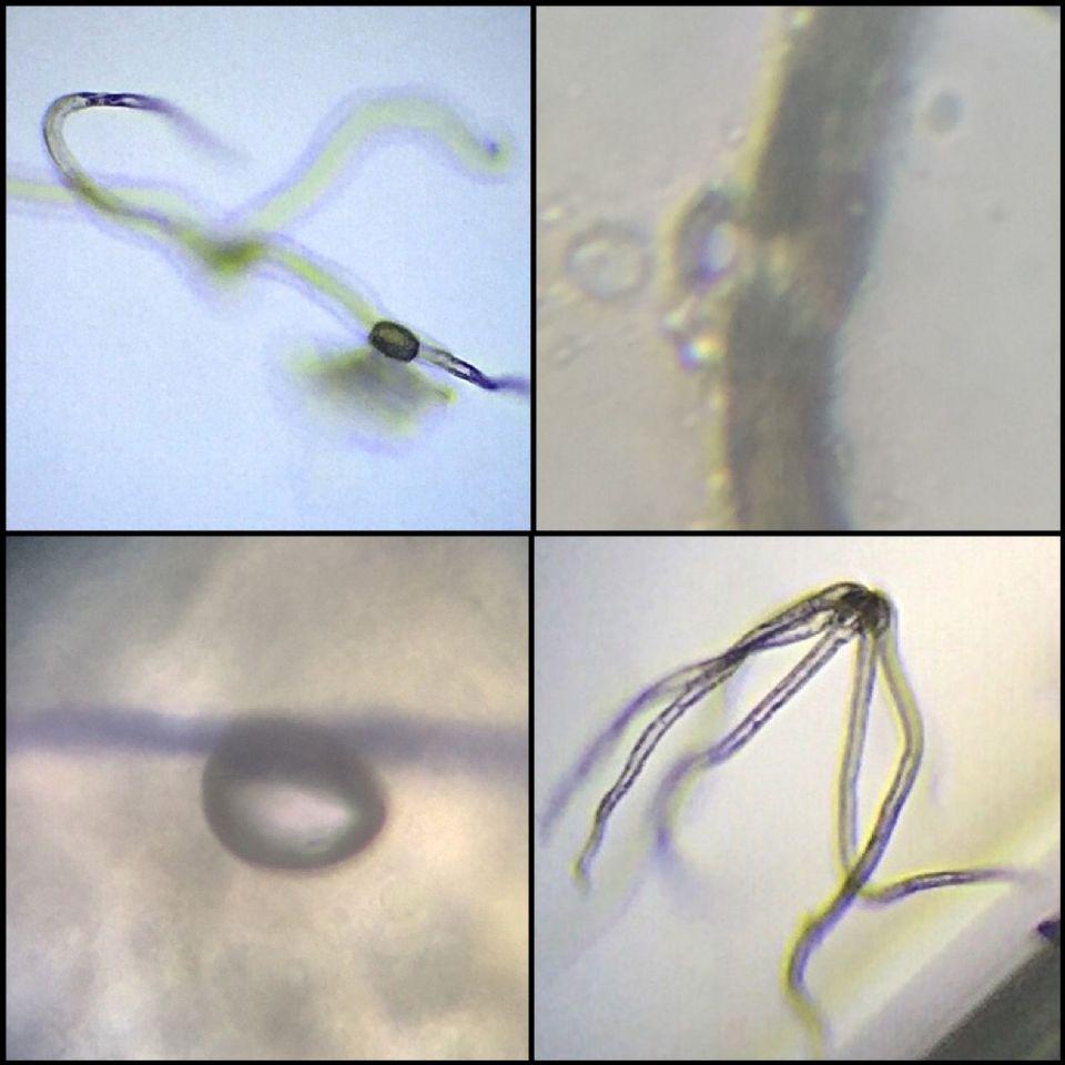 http://curezone.com/upload/Parasites/IMG_8220.jpg